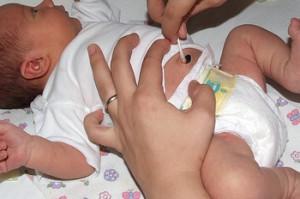 Как правильно обрабатывать пупок у новорожденных?